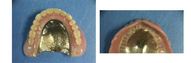 チタン床義歯作製