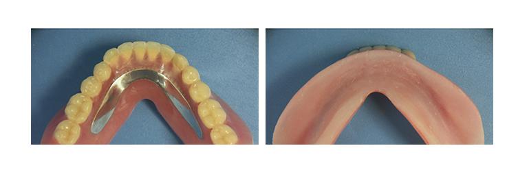シリコン床義歯作製