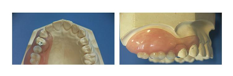 フレキサイト義歯作製